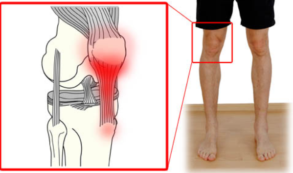 dolor detras rodilla al caminar